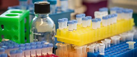 test tubes and vials in a lab